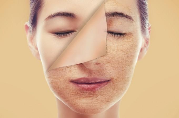 Steam facial para piel seca