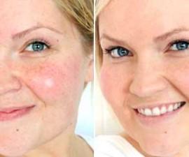 maquillaje-tapar-manchas-en-la-piel