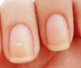 remedios para las uñas amarillas